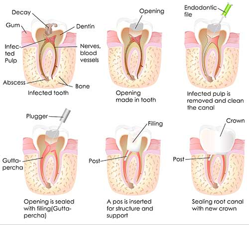 Glendale Root Canal